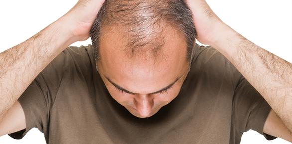 Largest FUE Hair Transplants