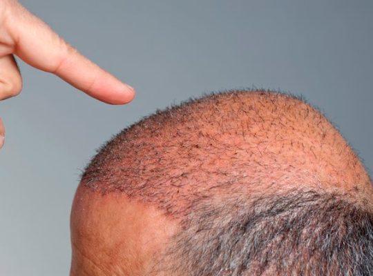 hair-transplant-risks