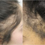 Tackling Traction Alopecia