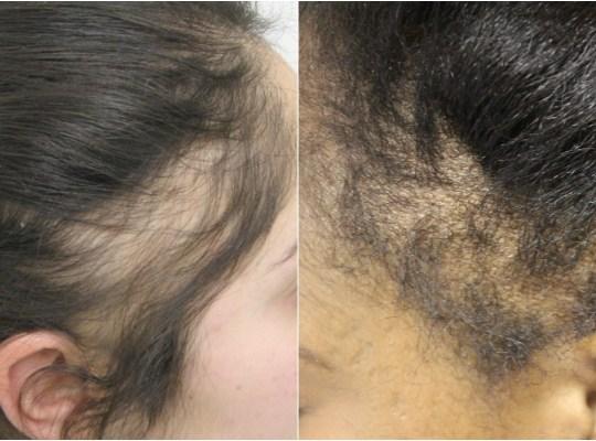 Tackling Traction Alopecia