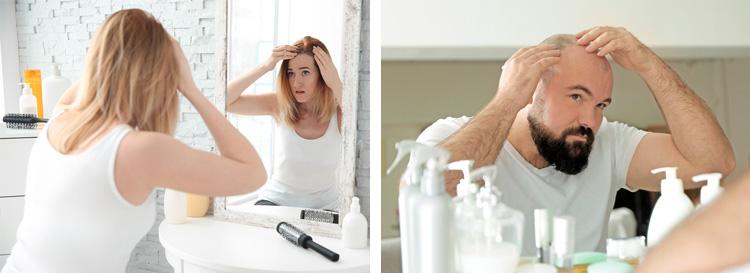 male-female-hair-loss