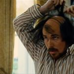Lies About Hair Transplant and Hair Loss