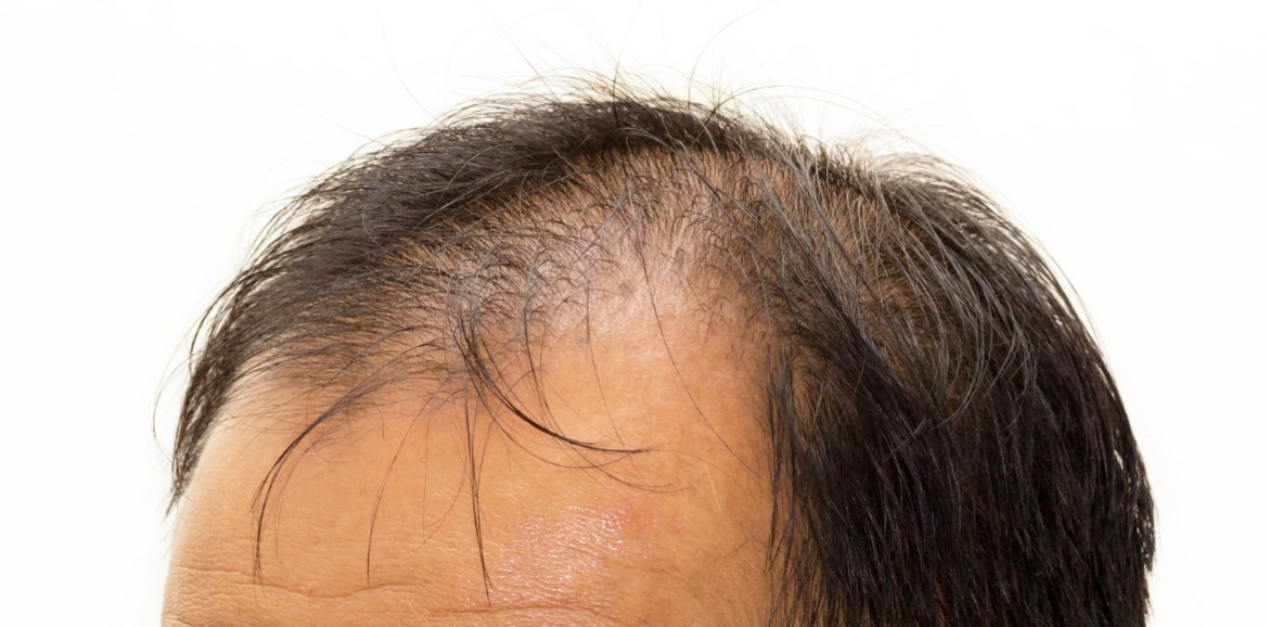 candidate-for-hair-transplant
