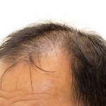 What Makes The Best Hair Transplant Candidates