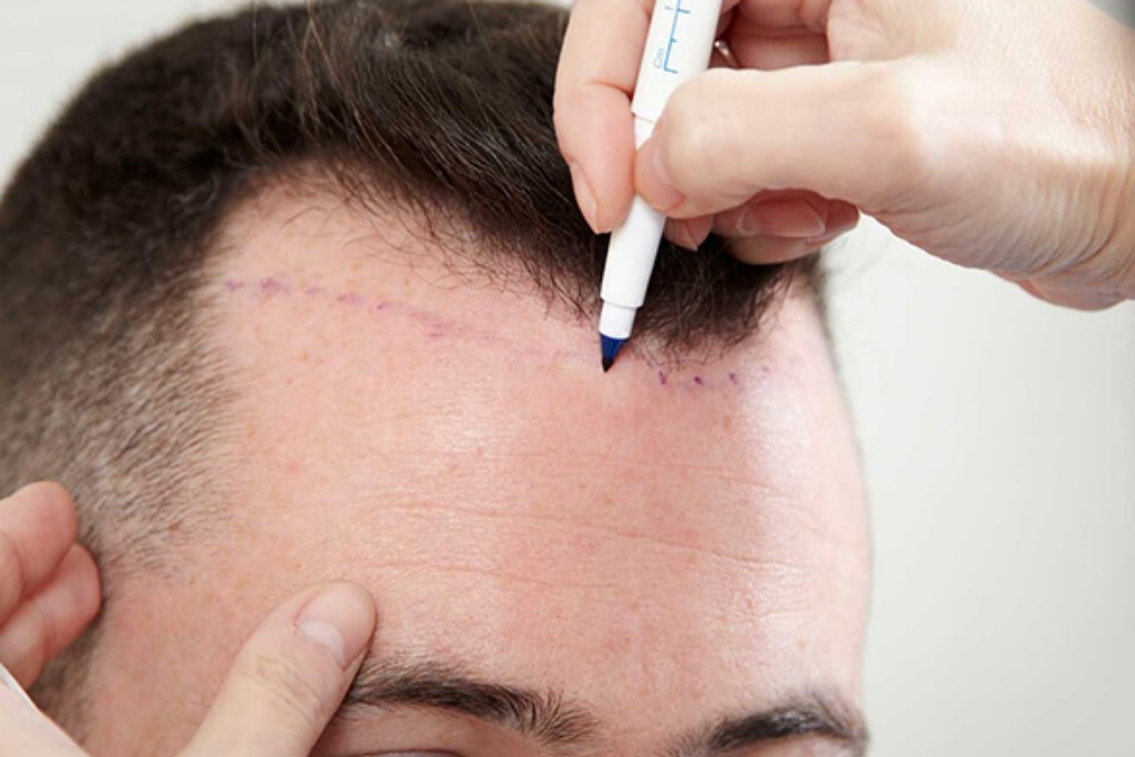 The First Hair Transplant Is The Most Important
