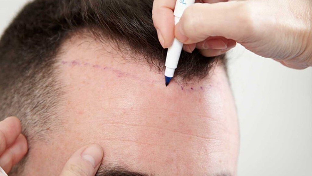 hairline-hair transplant-planning