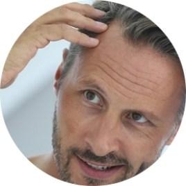 hair-restoration-planning