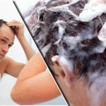 Question: Can A Shampoo Cause Hair Loss?