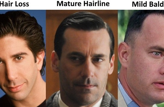 male-hair-loss-stages