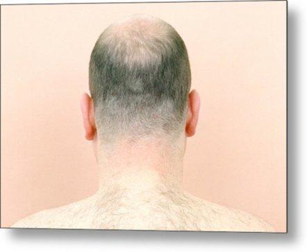 Crown/Vertex Hair Restoration