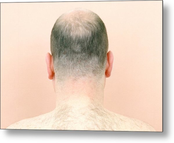 Hair Transplant Donor Hair Techniques