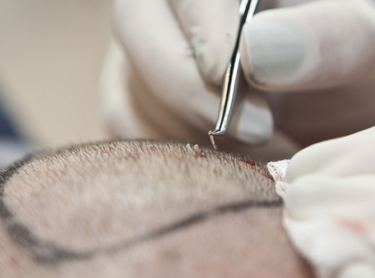 hair-transplant-graft-placement