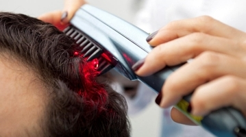 Laser Therapy For Male and Female Hair Loss