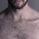 Using Body Hair for Hair Transplant Hair Restoration  (BHFUE)