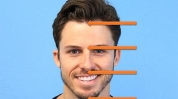 Male Hairline Design