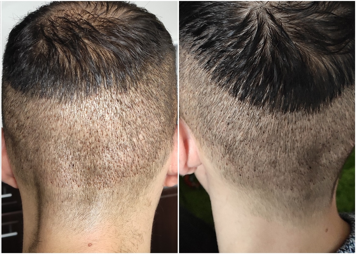 7 Days Post-op Healing FUE