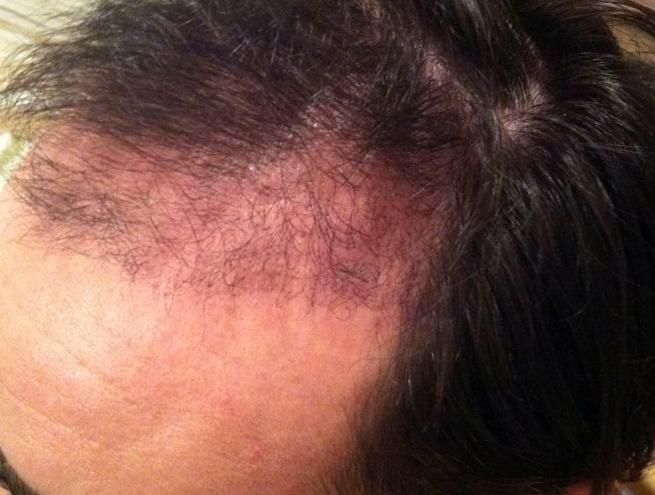 3 Months post-op hair transplant