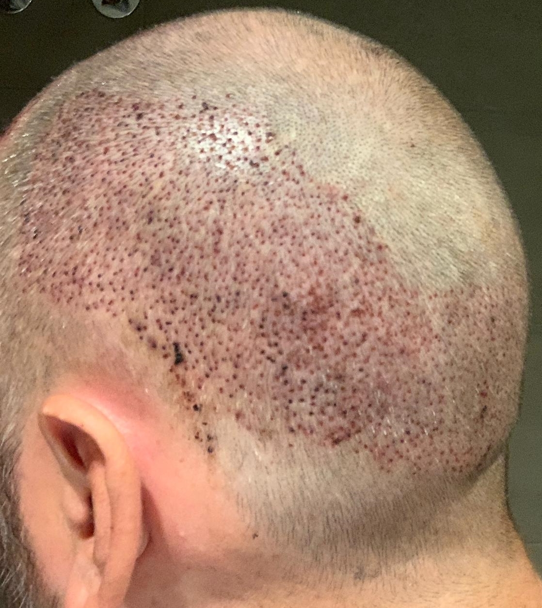 1 Day Post FUE Healing