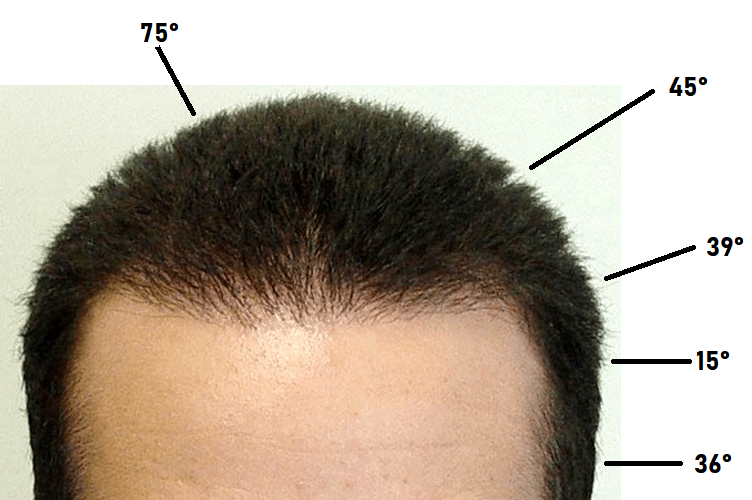 Refined Hair Transplant Results