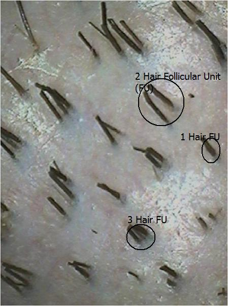 Follicular unit sizes