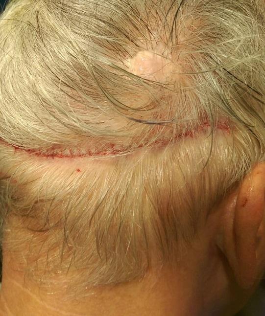 Strip suture