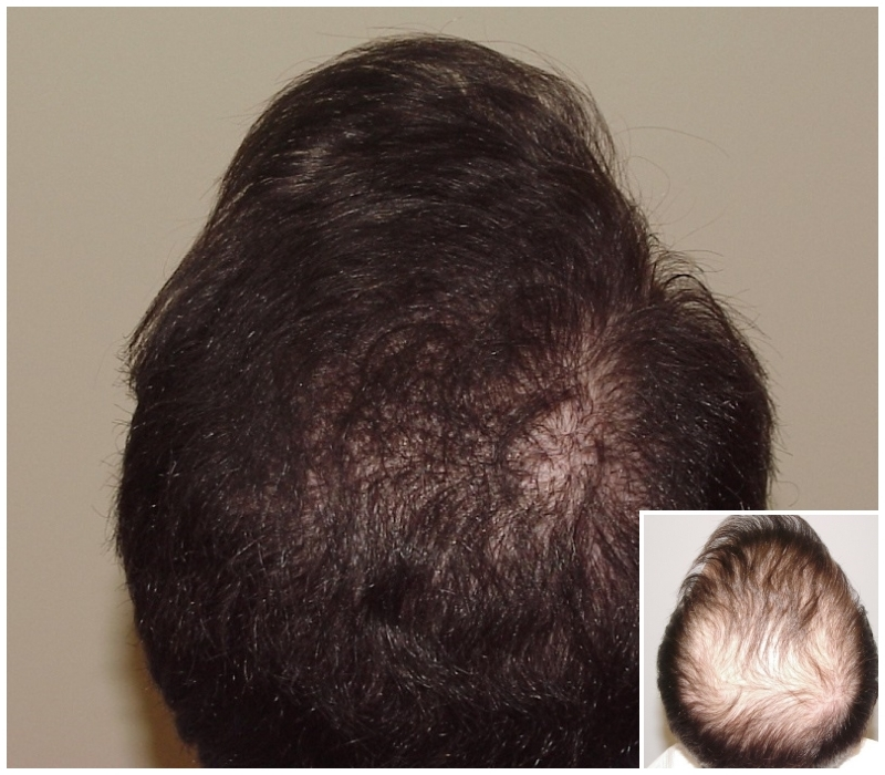 2 FUE hair transplants on a NW5 hair loss