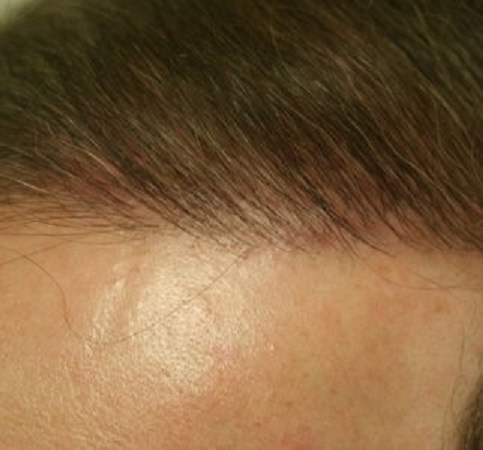 Hair transplant hairline brushed up
