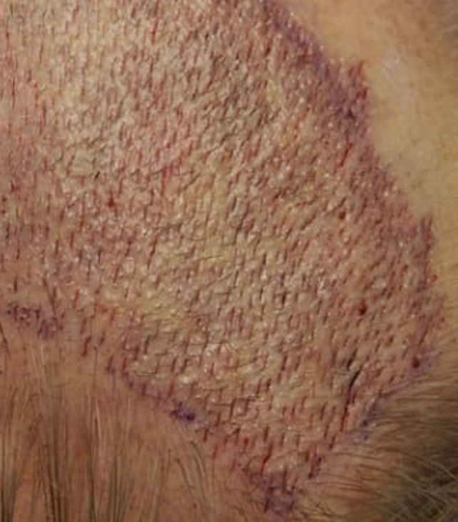Hair transplant recipient sites
