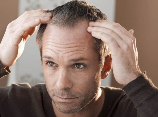 work related hair loss