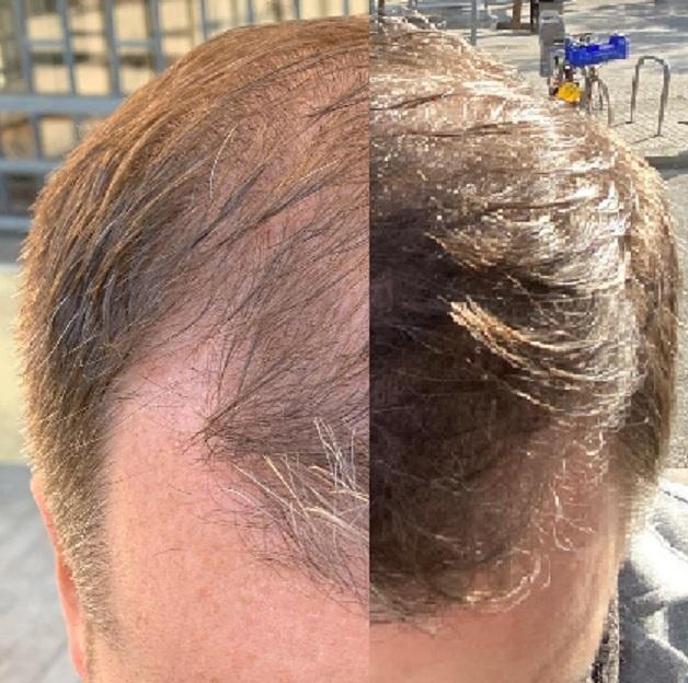 FUE Hair Transplant Result Dr Fotis