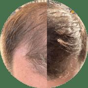Treatment for advanced hair loss