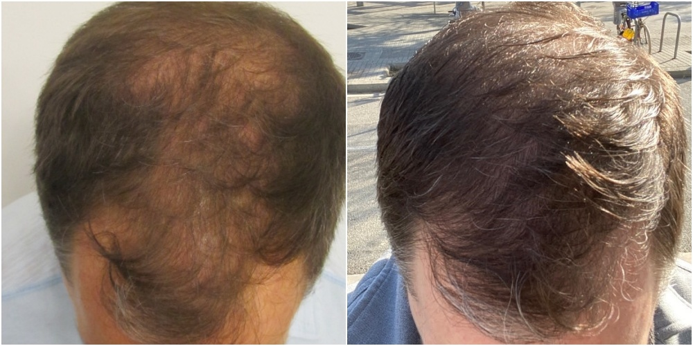 FUE Hair Transplant Result Greece