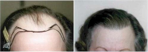 dr cole women hair transplant atlanta GA