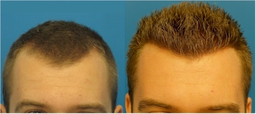 hasson wong hair transplant results