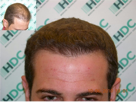 HDC hair transplant Patient Results London UK