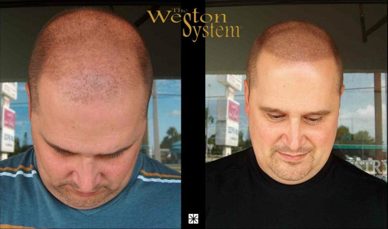 Hair Replacement Weston System