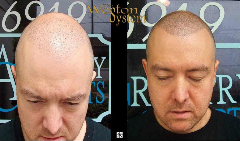 Scalp Tattooing Hair Restoration