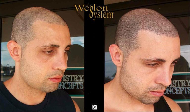 Weston Hair Restoration