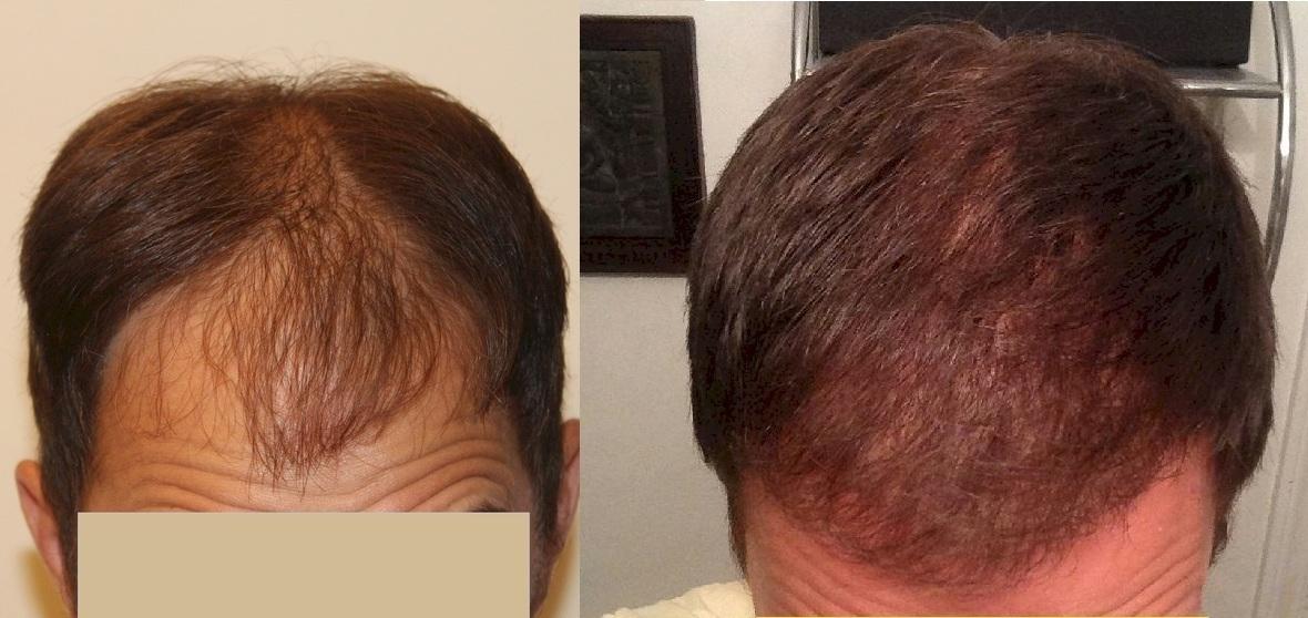 dr keser hair transplant patient