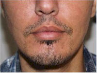 Belgium FUE beard transplant