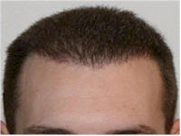 FUE Norwood 4 hair transplant Belgium