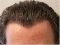 Dr. Mwamba Belgium 1793 grafts FUE patchy shaven