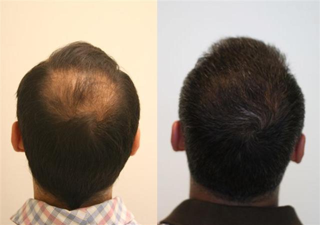 Alvi Armani Hair Transplant