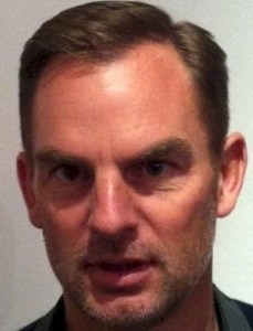 Dutch Football celebrity Ronald de Boer Hair Transplant