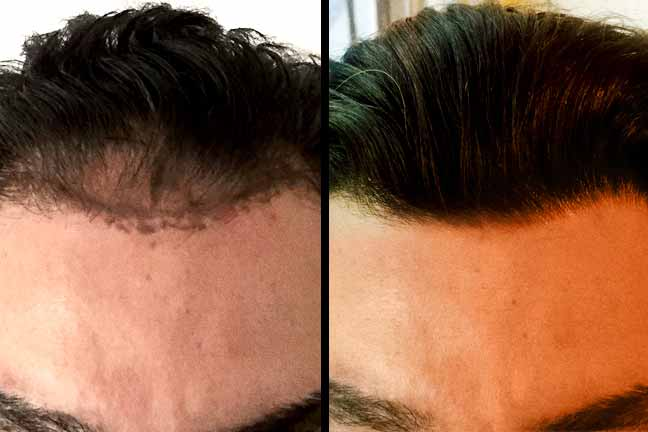 Dr. Matt Tahsini Hair Transplant Photos
