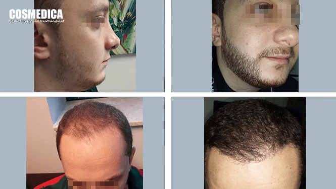 cosmedica-hair-transplant-istanbul-turkey