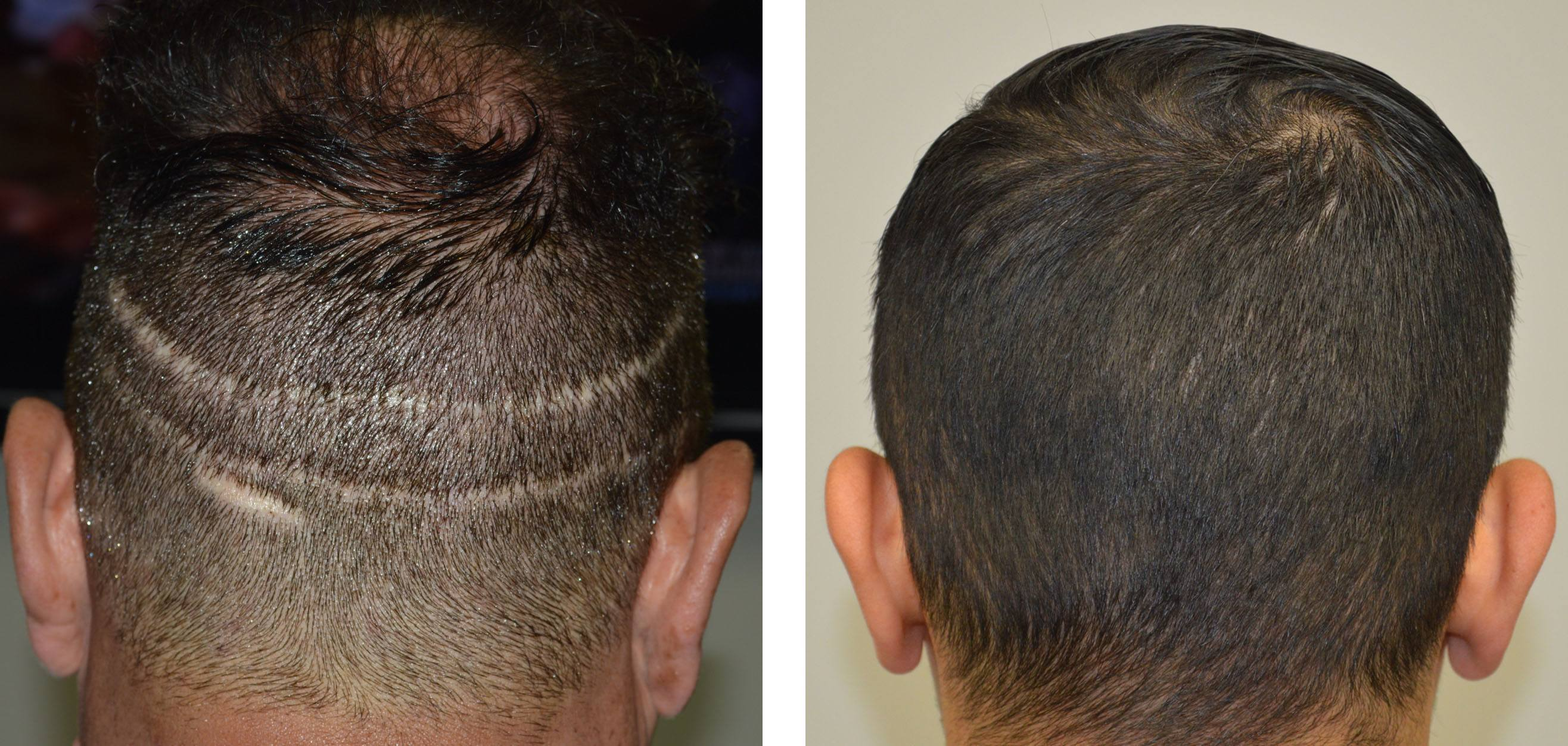FUE vs Strip Hair Transplant Donor Site