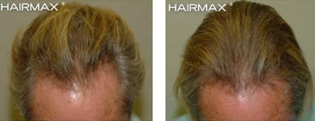 hairmax-men-result-