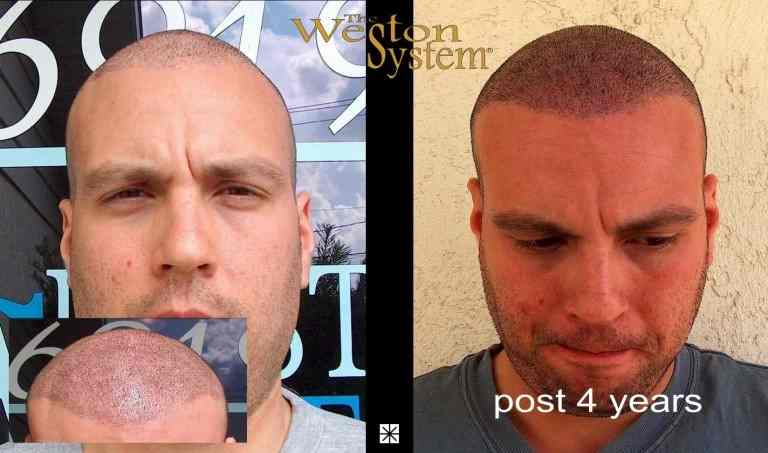 Hair Transplant Repair Scalp Micropigmentation
