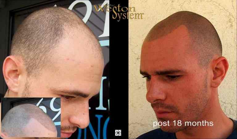 Robert Anzalone Joe Taylor Hair Restoration